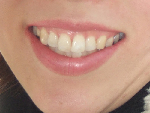 Caucasian tangowire hookup only smokers teeth whitening